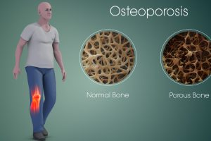 Osteoporosis – A Condition On Bones As Brittle As Glass