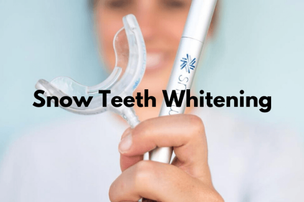 Teeth Whitening – Top 5 Things That You Should Know About